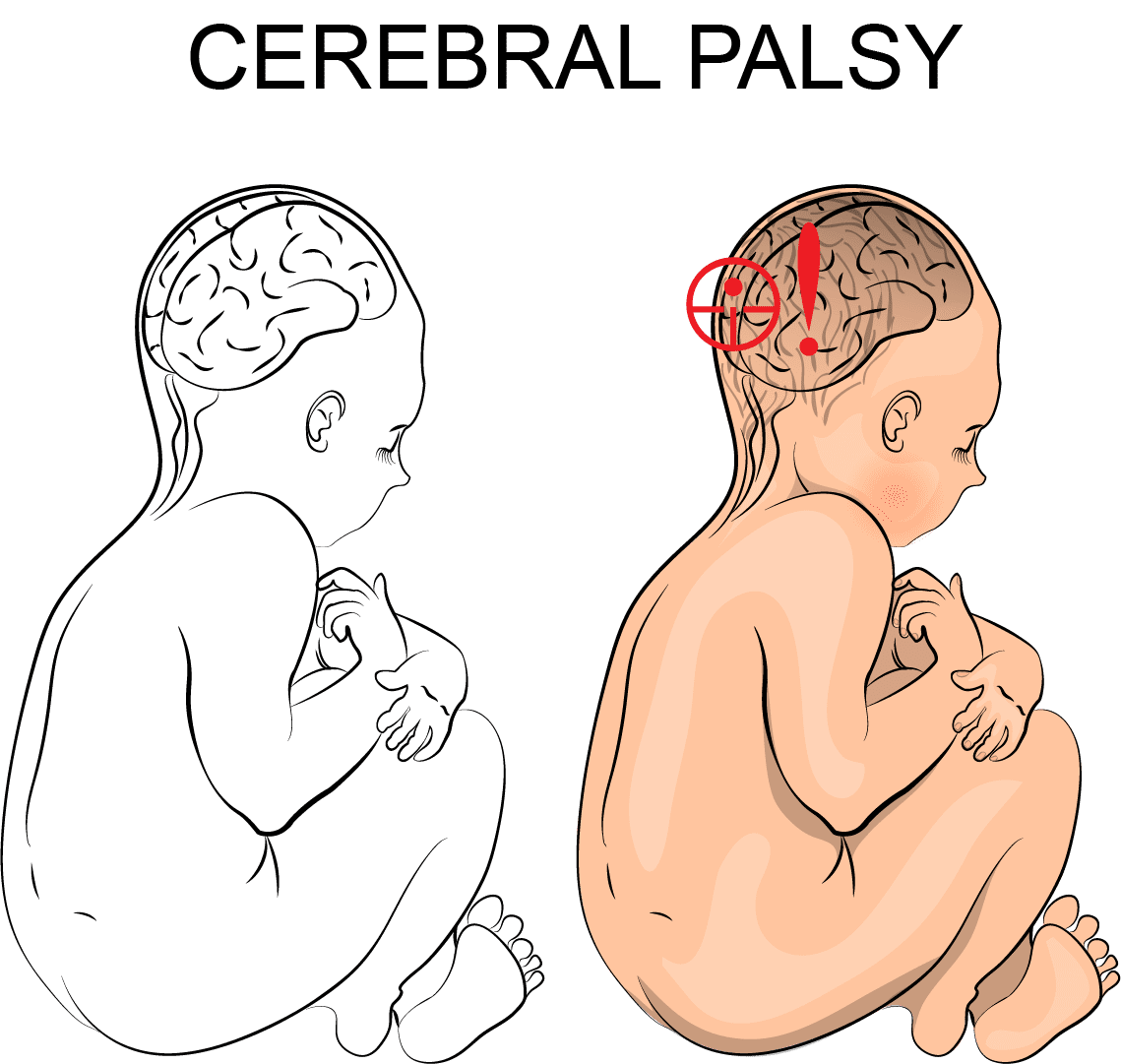 cerebral palsy; neonatal brain damage; CP; birth injury; disability; special needs