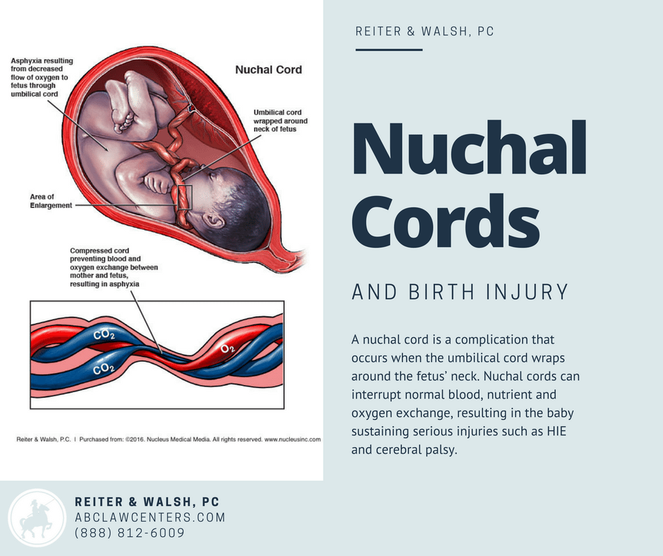 Nuchal Cords and Birth Injury