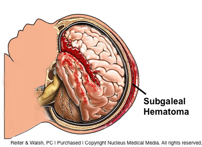Newborn Subgaleal Hematoma and Medical Malpractice