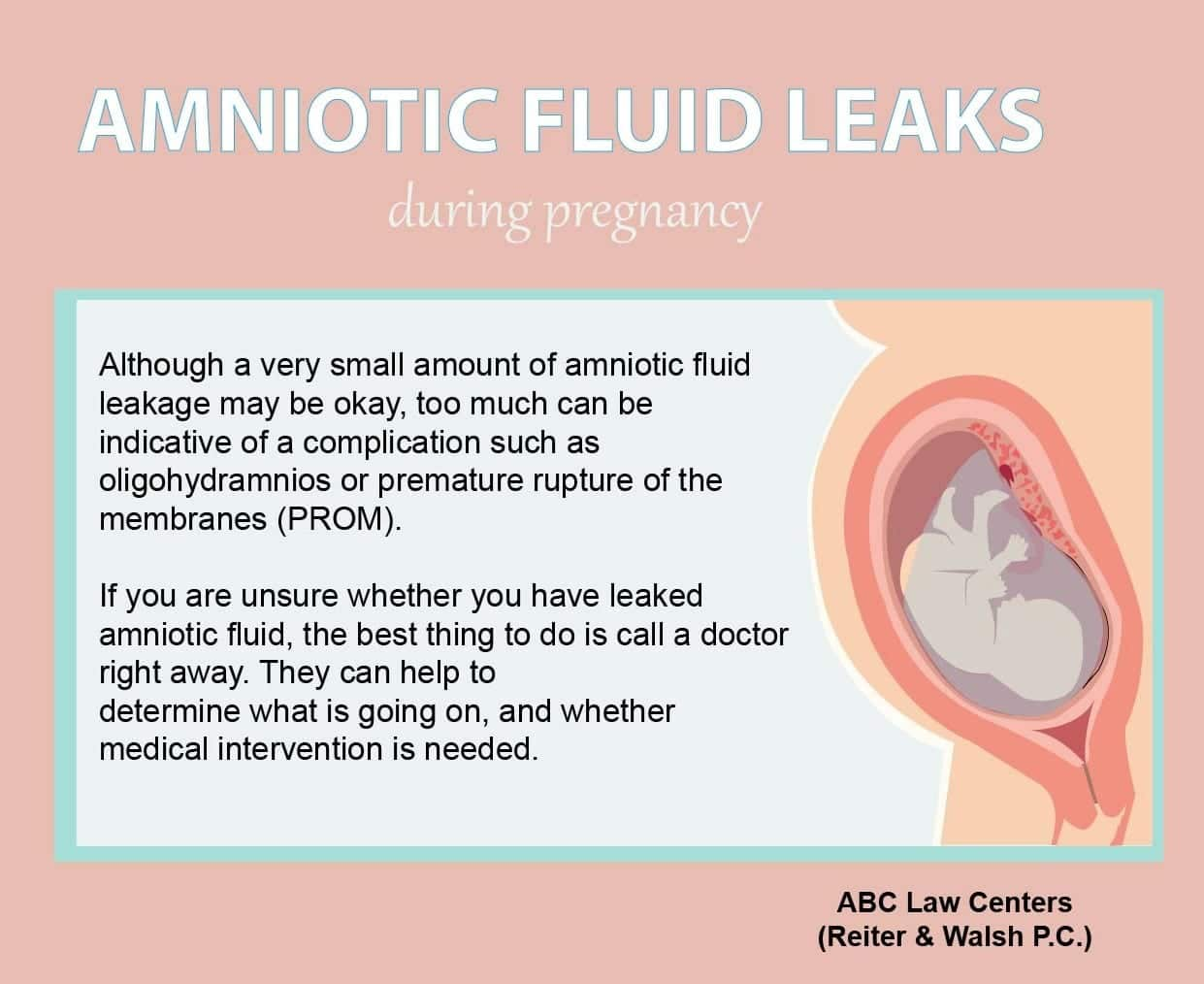 Leaking Amniotic Fluid, Oligohydramnios, and Birth Injury